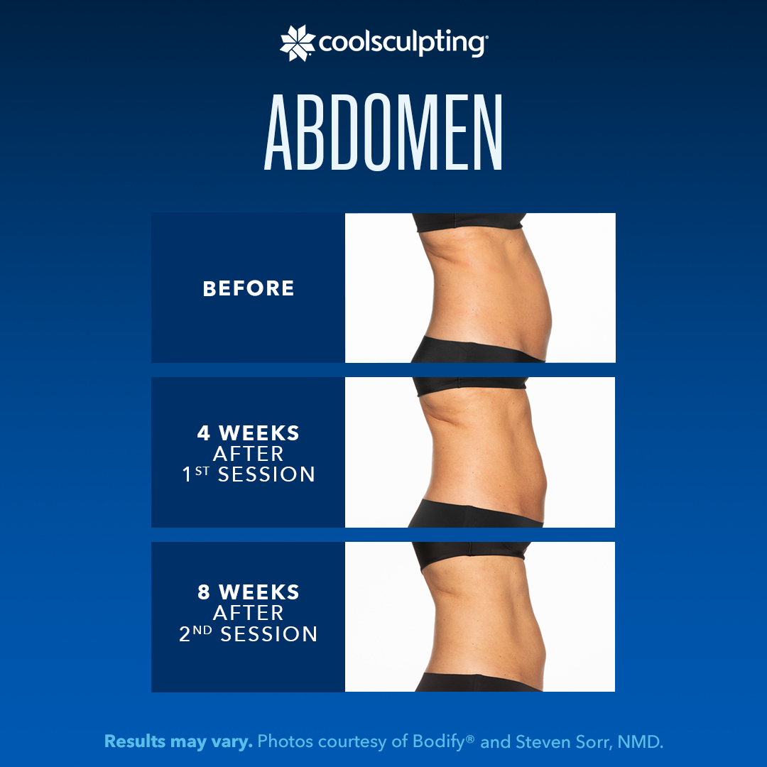 before and after pics of coolsculpting results